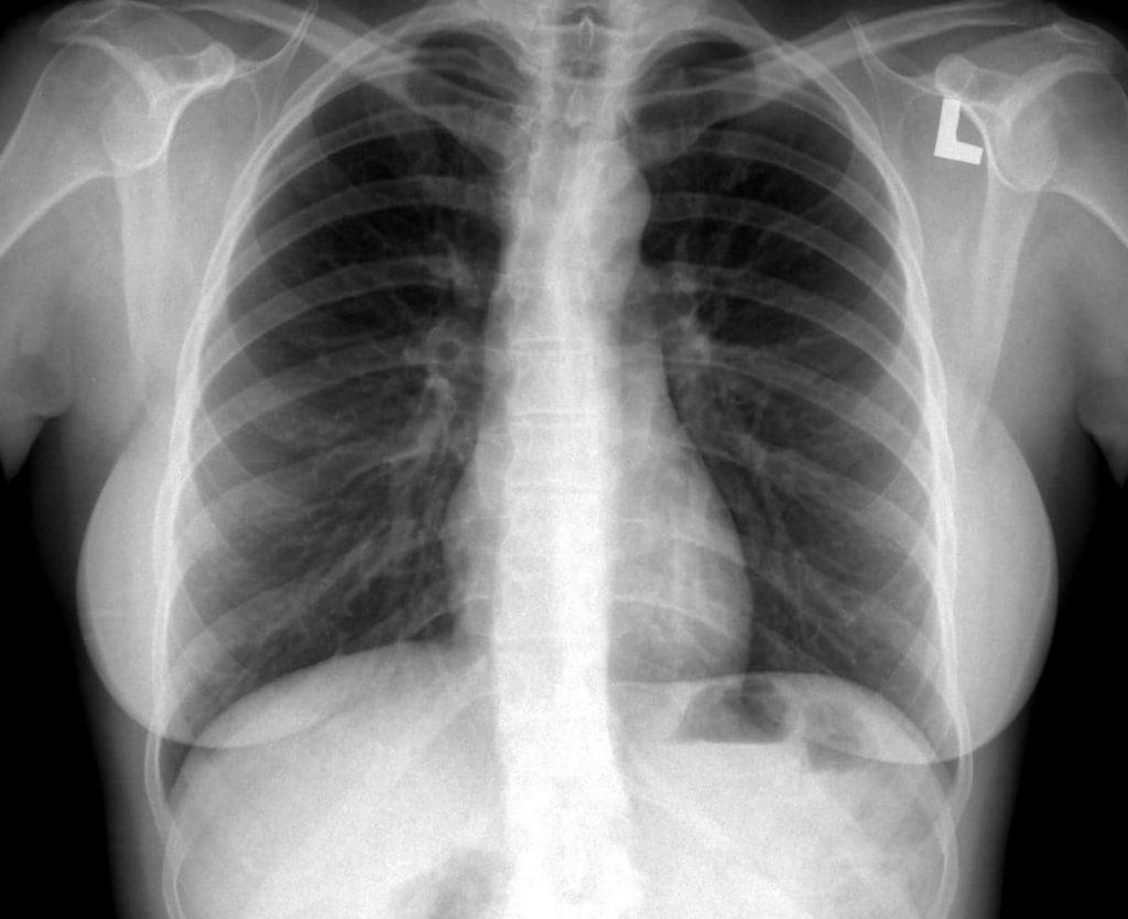 rentgen płuc